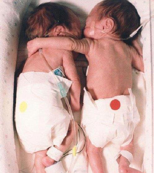 Krankenschwester verstößt gegen Regeln und rettet Babyleben.