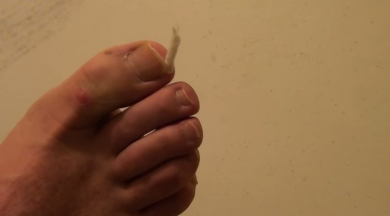 Ohne OP: 3 Hausmittel gegen eingewachsene Zehennägel.