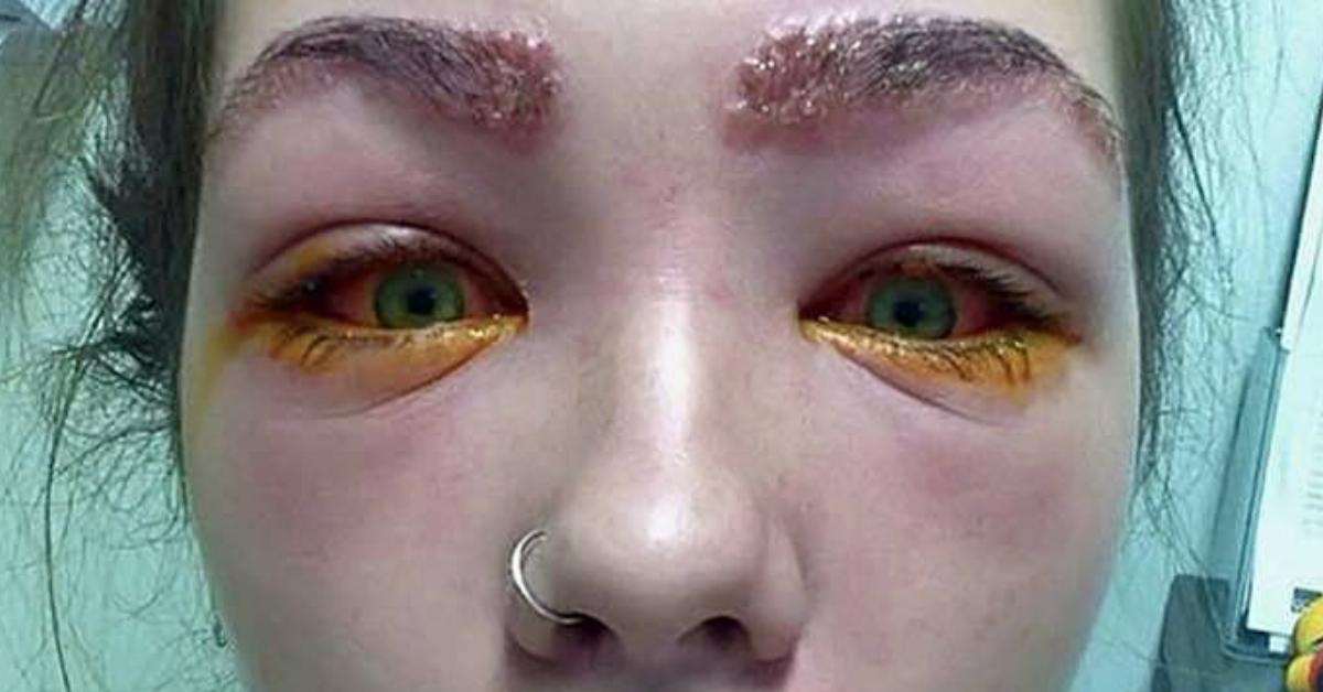 Menschen Ohne Augen