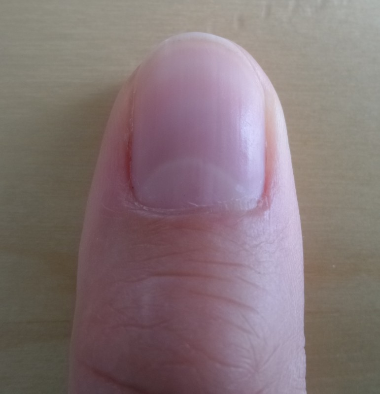 Halbmonde Auf Den Nägeln Verraten Gesundheitszustand This Is