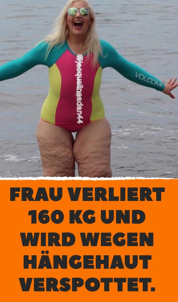 Frau verliert 160 kg und wird wegen Hängehaut verspottet.
