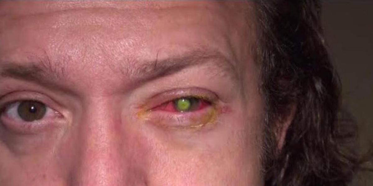 O, Gott! 39-Jähriger verliert durch Kontaktlinse fast