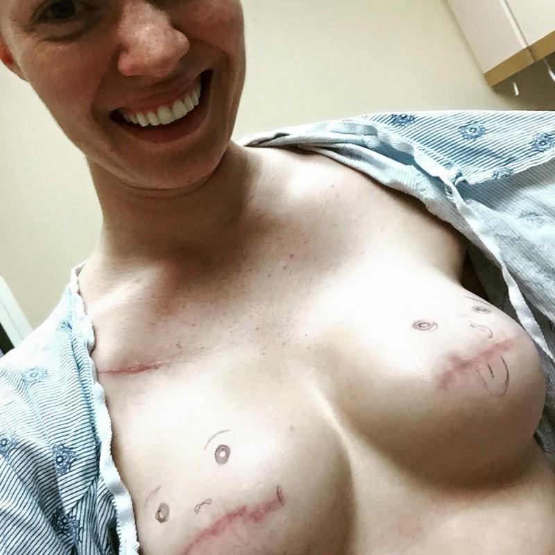 Amputierte frauen nackt