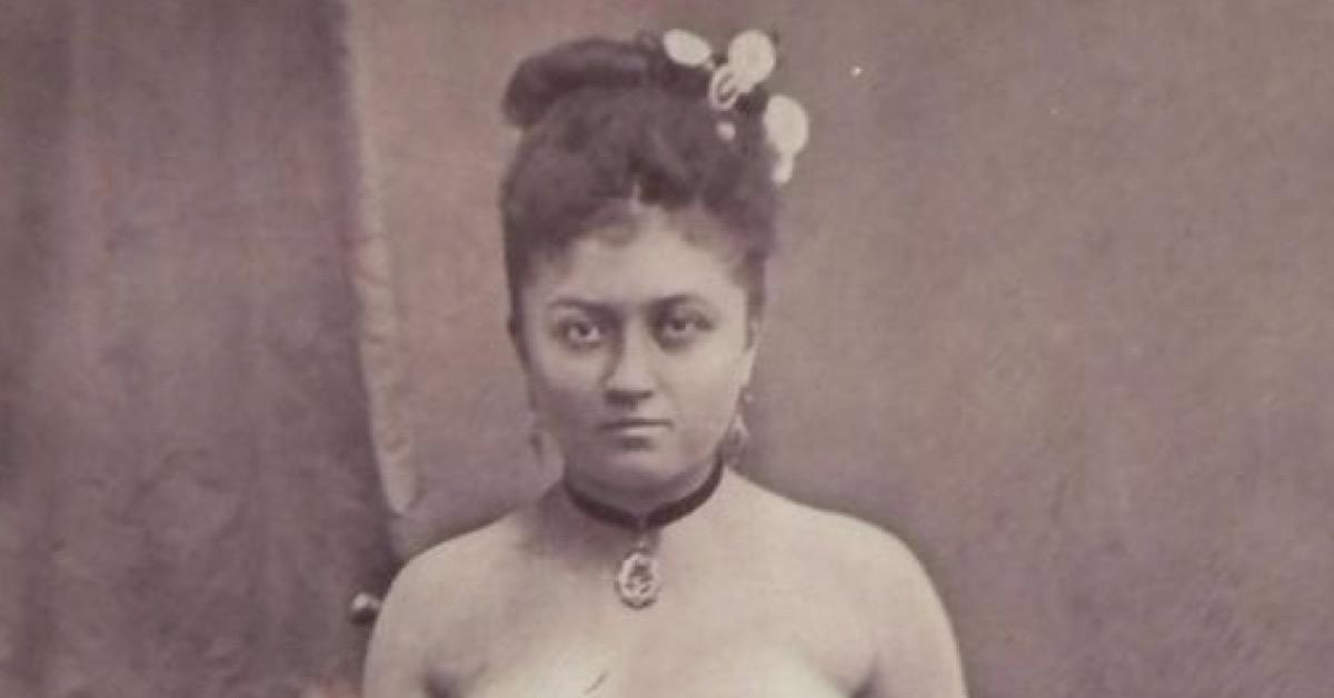 Frau mit 3 Beinen und 4 Brüsten verblüffte Mediziner.