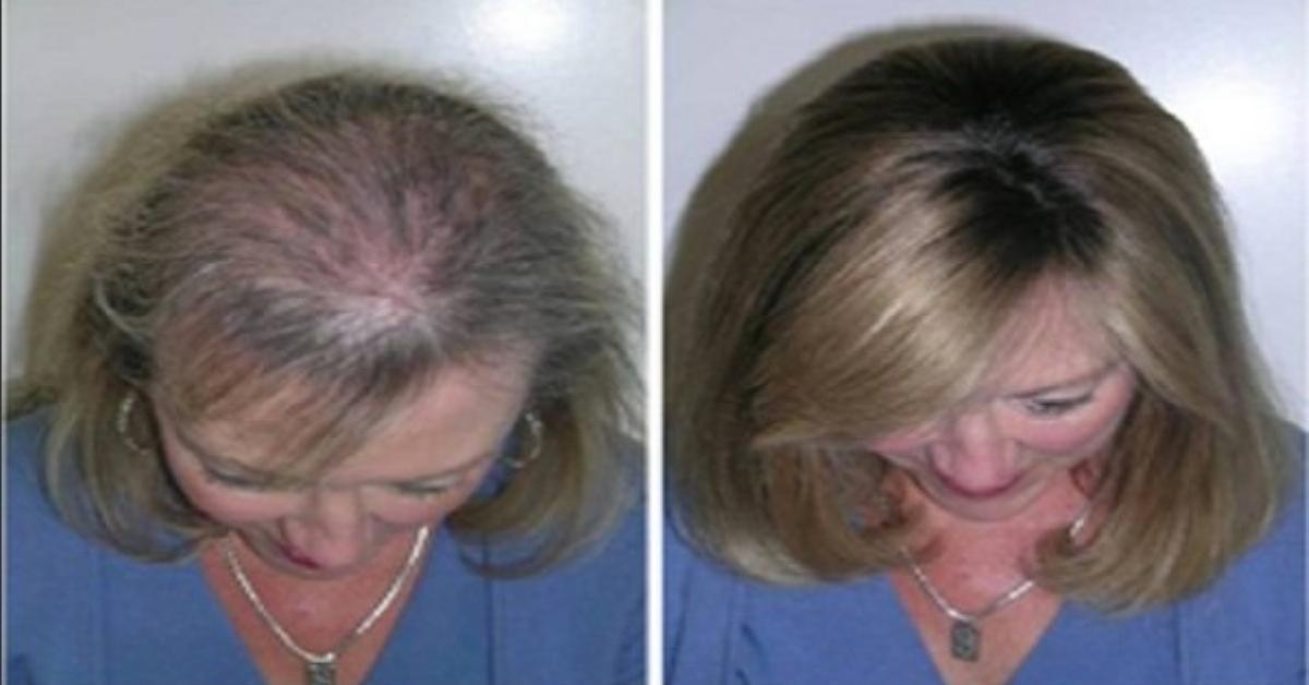 Gegen Haarausfall 3 Haarpflege Tipps Mit Rizinusöl