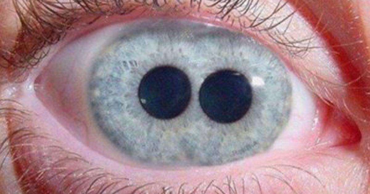 31 Fakten über das menschliche Auge.