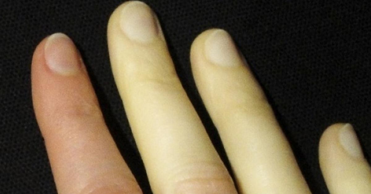 9 Korpersignale Und Symptome Auf Die Du Horen Solltest