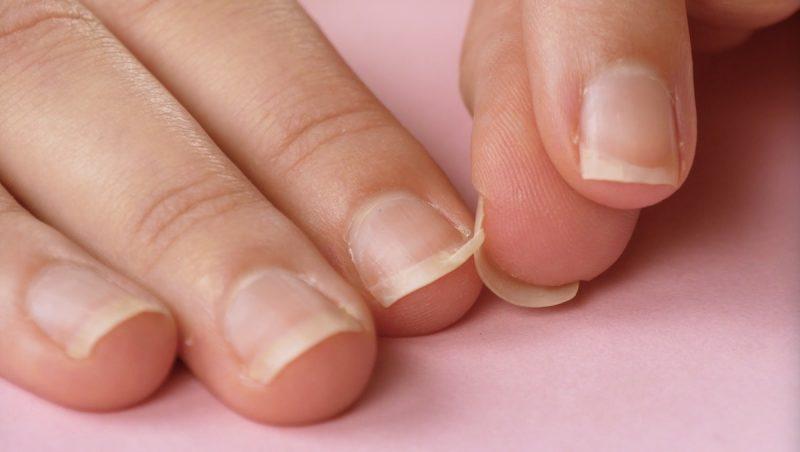 Eingerissener fingernagel