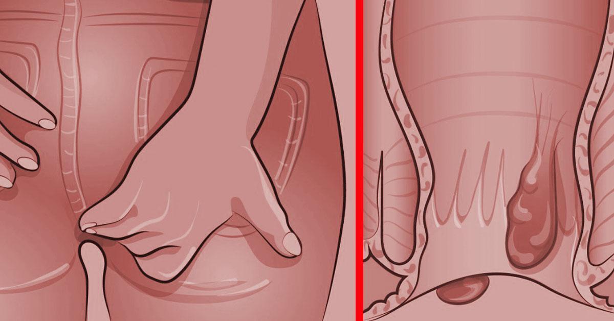 Was Kann Man Gegen Cellulite Am Po Machen
